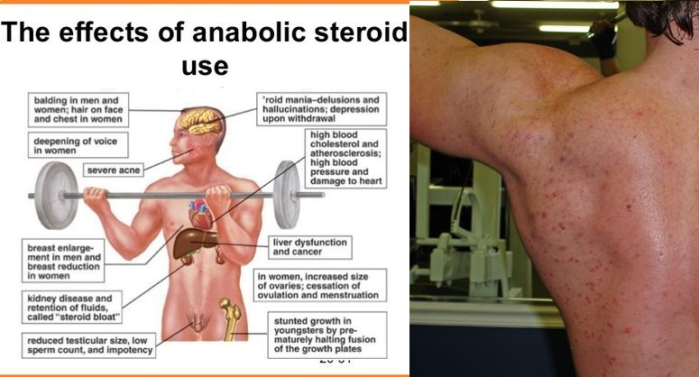 The Dangers of Steroid Use in Fitness Training