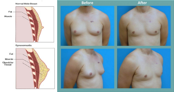 How To Reduce Man Breasts Effectively