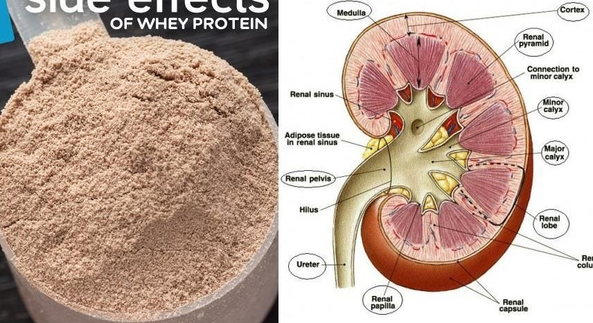 Are There Any Side Effects of Taking Too Much Protein?